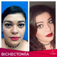 Testimonio de Bichectomia 2