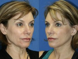 Testimonio de Implantología facial